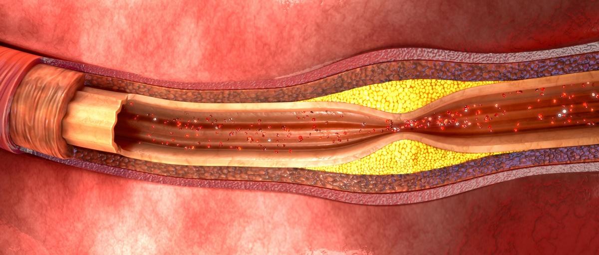 Da li ste se zapitali: Kada, u stvari, počinje ateroskleroza?